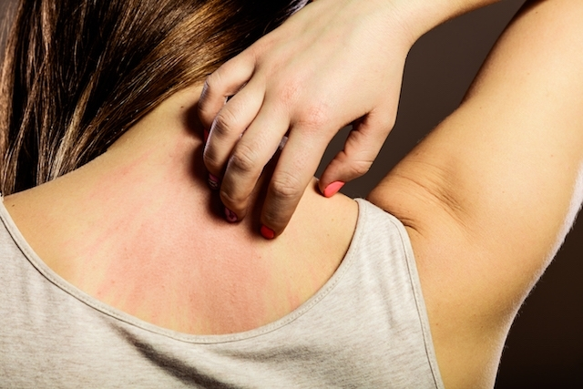 4 alergias de pele mais comuns no verão