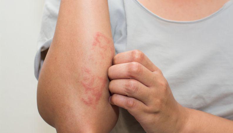 Urticária aguda e crônica: quais as diferenças?