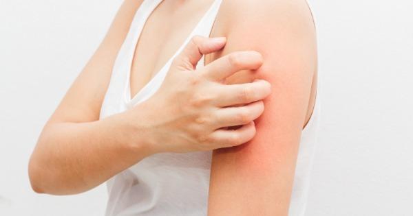 Por que algumas pessoas desenvolvem alergia e outras não?