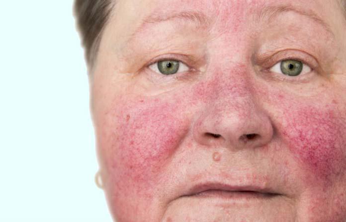 Rosácea ou alergia: saiba como identificar