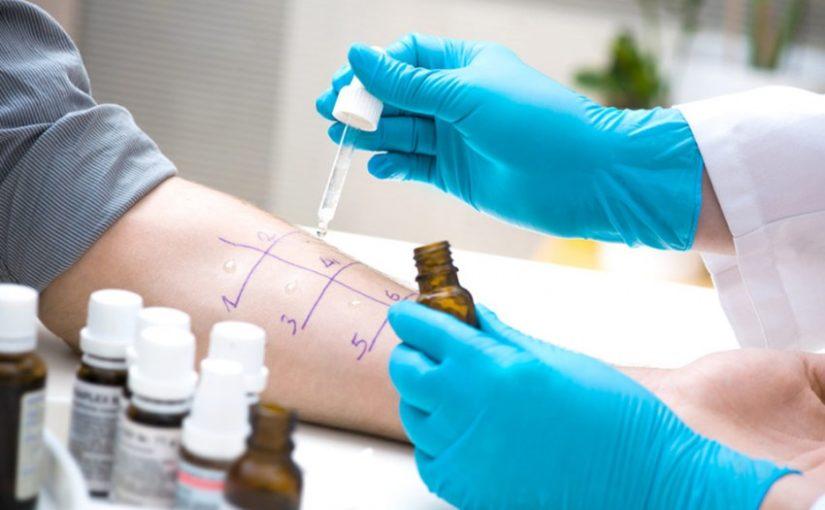 Como se preparar para testes cutâneos de alergia?