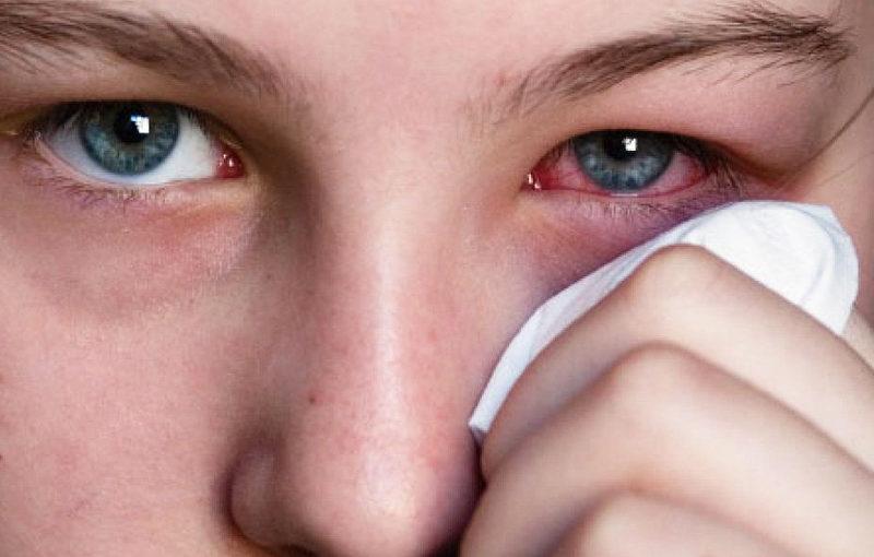 Por que algumas pessoas têm conjuntivite alérgica?