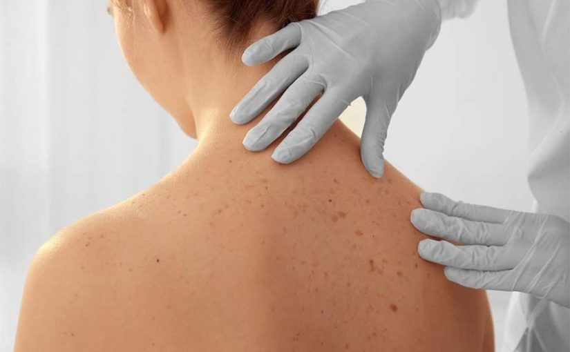 Qual a diferença entre dermatite e psoríase?