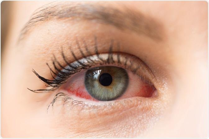 Como identificar uma alergia ocular?
