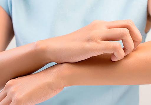 6 dicas para evitar crises alérgicas no período de superlotação de hospitais